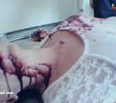 Choke Chamber – Tease To Death